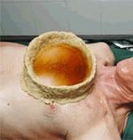 カティバスティ・ピチチリ(腰痛・肩こり)